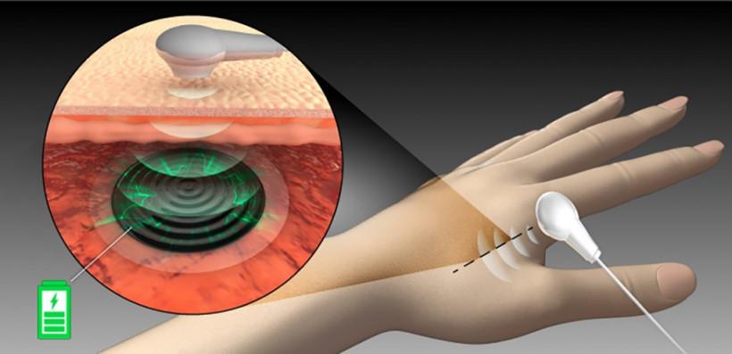 Ученые придумали, как дистанционно заряжать импланты с помощью ультразвука (ФОТО)