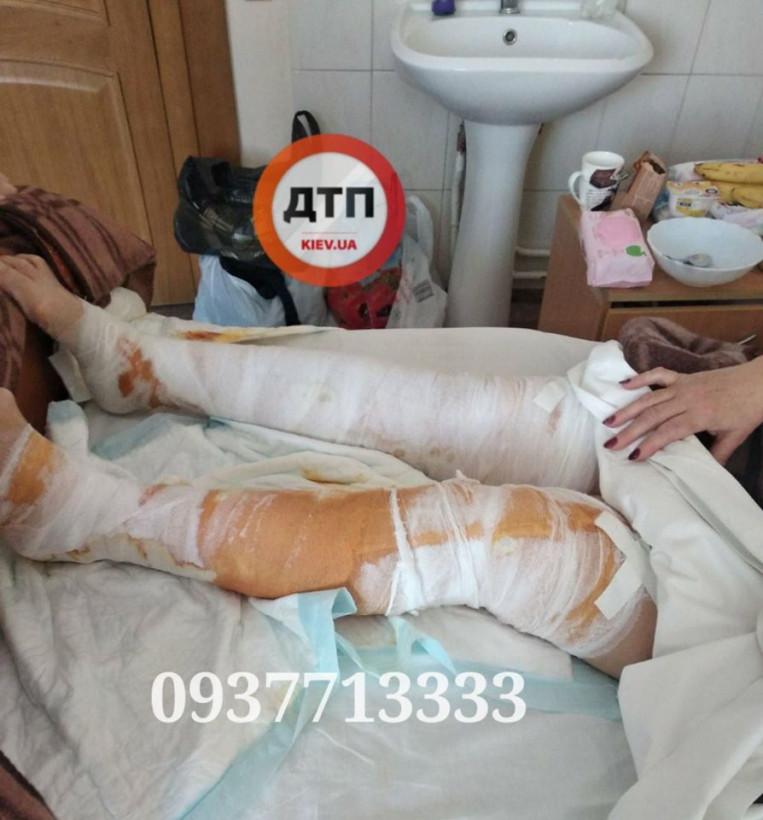 Затопление кипятком Ocean Plaza в Киеве: женщину из маршрутки с ожогами ног 2-3 степени отправили в больницу (ФОТО)