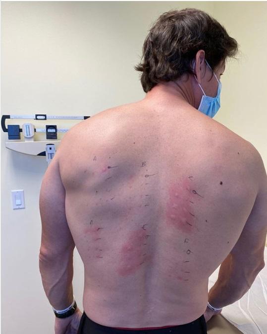 «Вся спина в пятнах»: голливудская звезда поведал о проблемах со здоровьем (ФОТО)