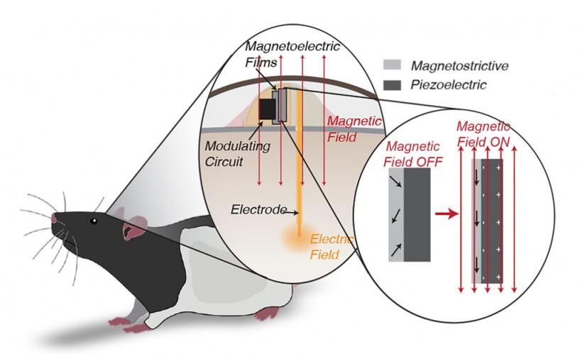 Ученые создали имплант для лечения болезни Паркинсона, питающийся энергией магнитного поля (ФОТО)