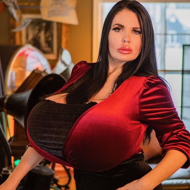 «Я часто падаю, когда спускаюсь вниз по лестницам»: Американская модель увеличила грудь до гигантских размеров (ФОТО)