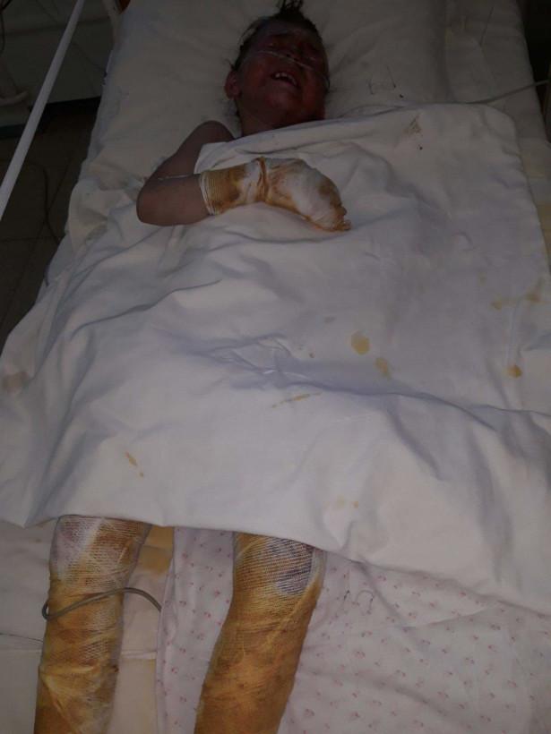 В Днепре в результате пожара пострадала 7-летняя девочка (ФОТО)